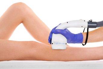 depilacja laserowa łydek