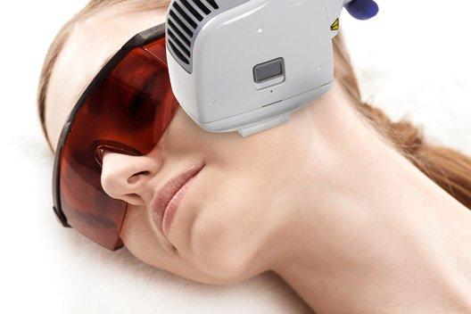 likwidacja rumienia laseroterapia 3