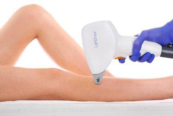 zamykanie naczynek laseroterapia